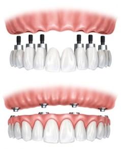 Implantologie3